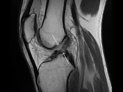 Functional ACL strategies - Part one.